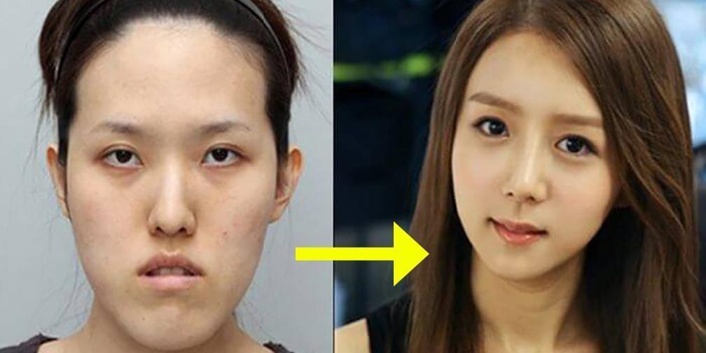 日本最帅整形医生:你的女神整过容!