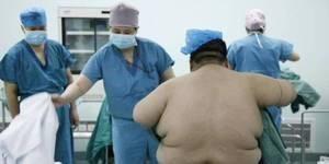 超重男子缩胃减重欲术后带儿旅行