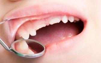 """被当成""""毒瘤""""的智齿一定要拔吗?3种情况是例外"""