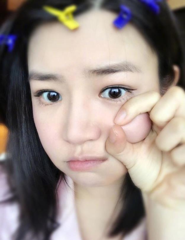 陈妍希发烧中仍坚持工作 晒自拍自侃烧成面包超人