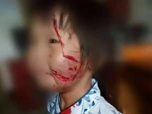 """梅州5岁娃被""""疯狗""""咬 面部缝了两条大疤痕"""