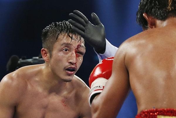 邹市明疑突发失明送医 拳击手因比赛失明不是个例