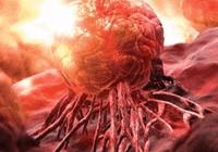 将药送入肿瘤内部!新研究将大幅减少化疗药物用