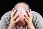 年关将至压力大 哪些人最爱脱发?