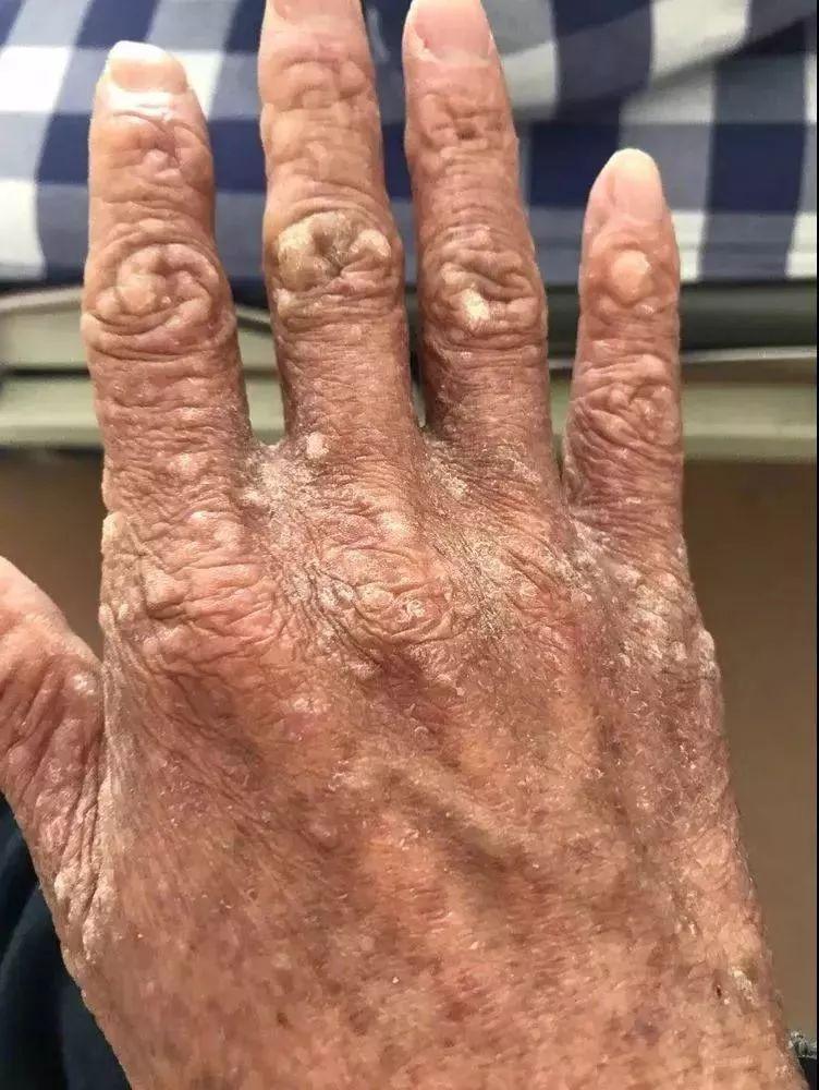 小伙15年来每天狂吃这种常见药 皮肤满是皱纹疙瘩