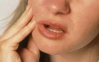 女子口腔溃疡没在意,三周后确诊舌癌!