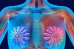 日本首次批准遗传性乳腺癌治疗药物