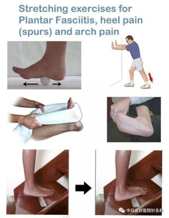 """脚后跟疼痛难忍!""""跟痛症""""应该怎么治?"""
