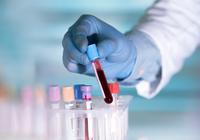 最新血液检测可发现10种癌症准确率达90%