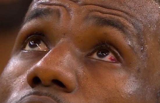 LBJ:G1是生涯最惨痛失利之一 医生说眼睛快好了