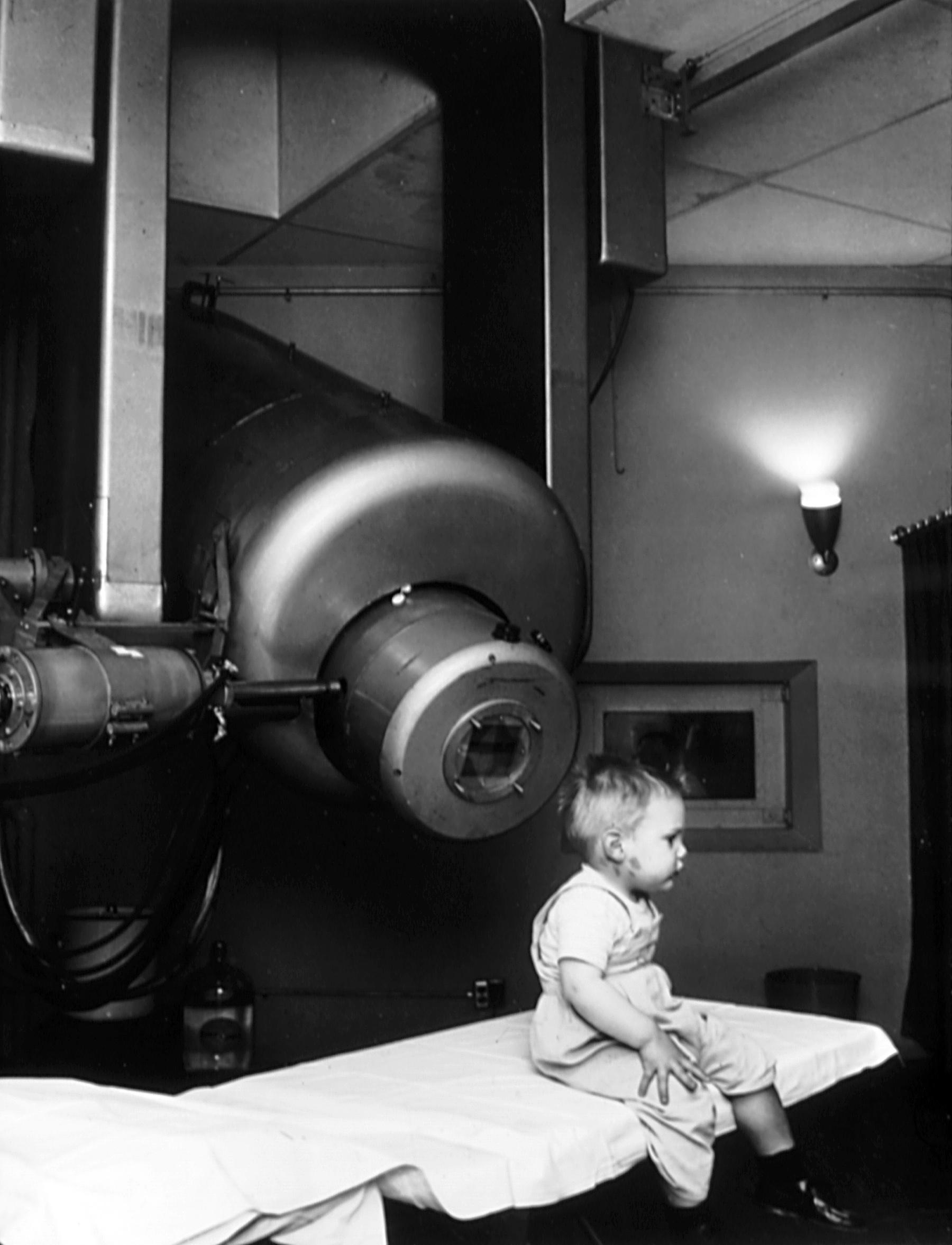 1957年第一位接受采用线性加速器的放射疗法治疗视网膜母细胞瘤的患儿Gordon Isaacs。他的右眼由于癌细胞扩散已于1957年1月11日摘除,其左眼则采取了放射疗法进行治疗,如今视力正常。/ Wikipedia