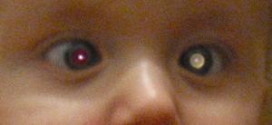 """视网膜母细胞瘤患儿表现出的""""白瞳""""与红眼症状。/ Wikipedia"""