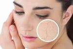 女性皮肤干燥怎么办? 如何改善?
