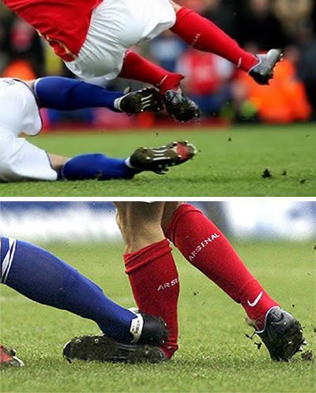 爆眼球 断鼻梁 折腿骨:绿茵场上受伤的N种姿势