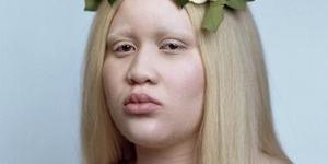 黑人女孩患白化病 逆袭成模特