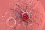 日本研究团队发现促进癌症转移的物质