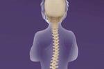 脊柱侧弯公益宣讲义诊活动