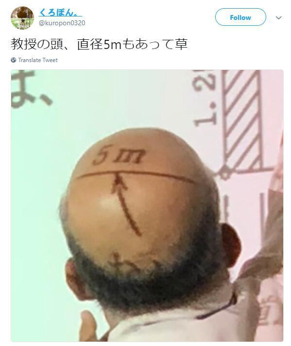 翻译:教授的头直径有5m!