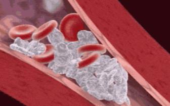 人的血管到底有多脏?保养方法都在这了