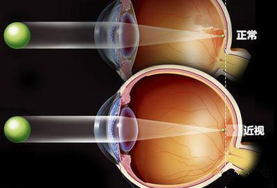 竟要削角膜?揭秘各种近视激光手术原理