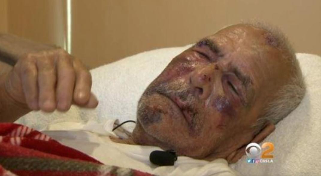 美国女子拿砖暴打92岁老人 还污蔑其想摸她女儿
