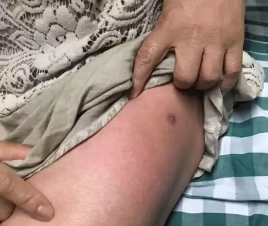 21岁姑娘网购宠物银环蛇被咬 医院宣布脑死亡