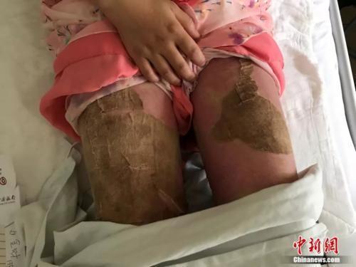 康静大方地向记者展示腿部创面,伤口恢复得很好。韩月 摄