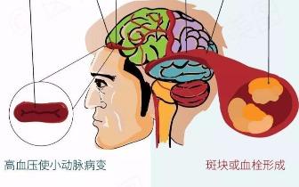 腔隙性脑梗塞、动脉粥样硬化性脑梗塞的辨证分型