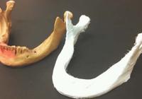 美科学家研发新植入物 能够逐渐分解加速骨骼生
