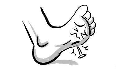 剔牙流血、铁钉扎脚,有伤口就可能得破伤风吗?