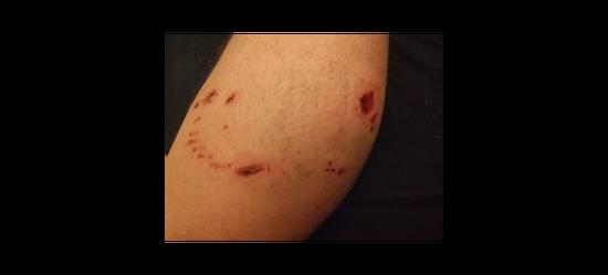 狗咬伤口。只要肉眼可见有出血,就是最高级别的暴露,伤口处理、注射疫苗、注射免疫球蛋白必须来一整套 / wikimedia comm><br></p><p>然而,中国人暴露后常常得不到及时规范的处理。以最简单的伤口处理为例,动物实验已经表明,用肥皂水充分清洗伤口15分钟以上就可以增加50%的生存率,这是一种最价廉而有效方法,然而也常常被大众甚至是医务人员忽视。</p><p>在狂犬病高发区进行的调查发现,死亡病例中有34-78%的人压根就没有清洗过伤口。而在临床实际工作中,有医务人员曾经在全国狂犬病检测总结会上发言表示,门诊患者多、工作量大,很难保证足够的冲洗时间。</p><p>几乎不要钱的伤口处理方法都推广不了,能够做到按要求足次、足量注射疫苗和免疫球蛋白的就更少了。卫生部的调查显示,死亡病例中只有1%的患者接受过免疫球蛋白治疗,其中很多人还没有做到及时、规范接种。</p><p class=