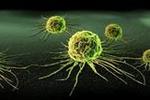 癌细胞为什么会转移到别处?又如何转移?