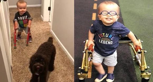 2岁男孩患脊柱裂 撑拐杖学走路走红网络