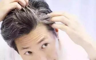 为什么头上会时不时冒出几根白发?改掉这些坏习惯!