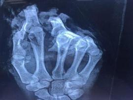 """女子手指被机器绞断,医生将脚趾""""搬家""""到手指!"""