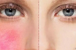 脸上红血丝形成的原因是什么?