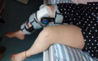 湖南16岁女孩上体育课髌骨脱位后致抑郁倾向