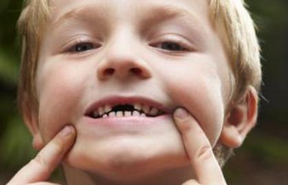"""牙齿变形计:儿童牙齿矫正能否""""一次就好""""?"""
