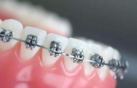 """不用""""铁齿铜牙""""牙齿也能改邪归正"""