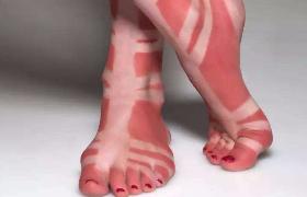 紫外线过敏和晒伤有何不同?