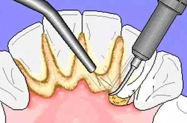 """健康公开课:想啃排骨?牙齿戴上""""金箍套""""就省了这份心思吧"""