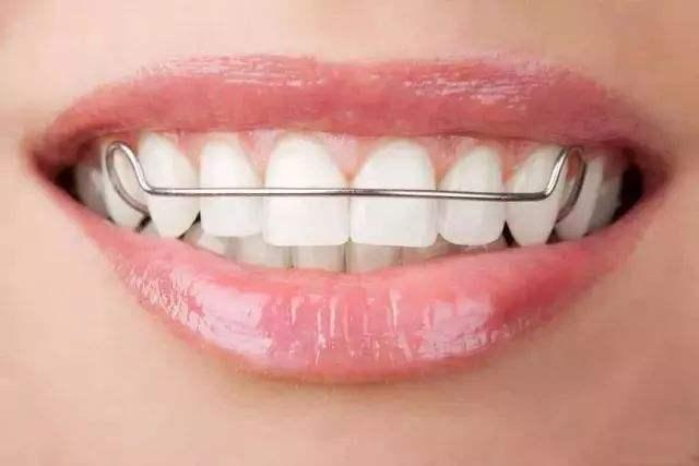 """矫正后不戴保持器,牙齿还会走上""""歧途""""吗?"""