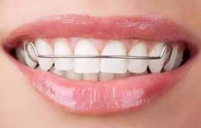 牙齿矫正后为什么要戴保持器?