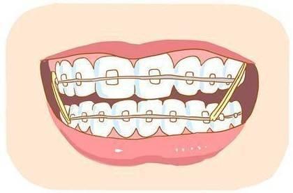 矫正后牙齿容易变松?这黑锅牙套不背!