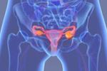 未来尿液棒或可应用于检测早期卵巢癌