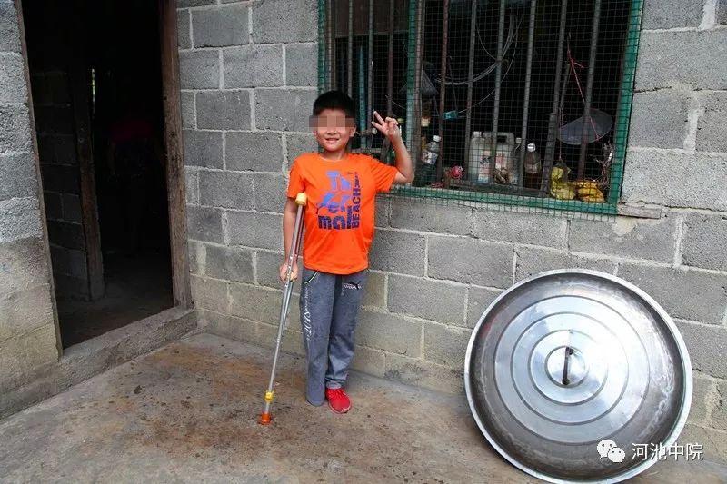 6岁时被开水烫伤后截肢 司法温暖抚慰少年