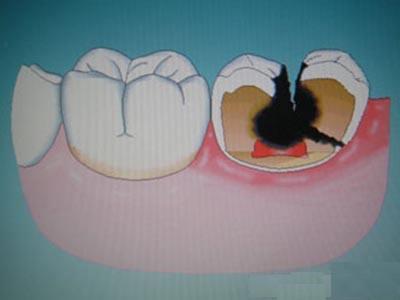 """健康公开课:感觉牙齿被蛀空 牙齿是如何走向""""腐败""""的?"""