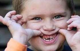 """儿童乳牙""""被虫吃""""要管吗"""