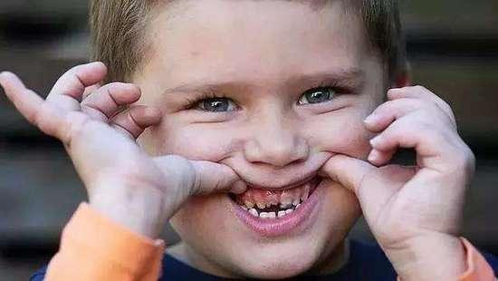 """迟早要换!儿童乳牙""""被虫吃""""真的不用管吗?"""