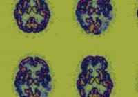 随着寿命更长 美国老年痴呆者40年或将增900万人